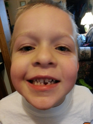 Lost my first tooth!